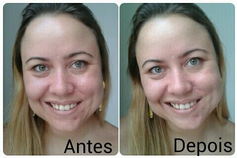 máscara bioart antes e depois