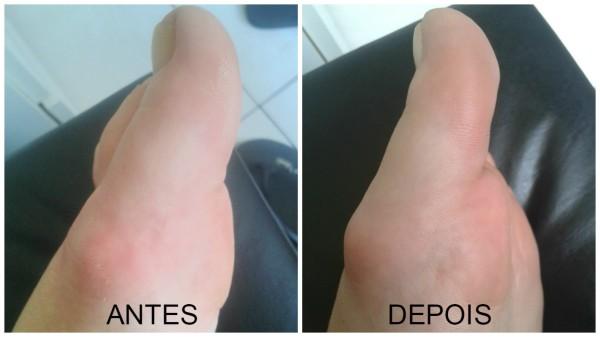 meias esfoliantes antes e depois.jpg