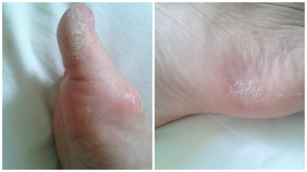 meias esfoliantes pé depois de três dias.jpg