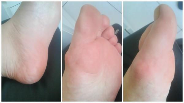 meias esfoliantes pés antes do produto.jpg